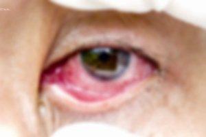 Zapalenie spojówek to nic takiego? Można stracić wzrok!