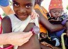 Hipokrates w Tanzanii: przy amputacji nogi, dwóch chirurgów musiało podzielić się jedną parą rękawiczek