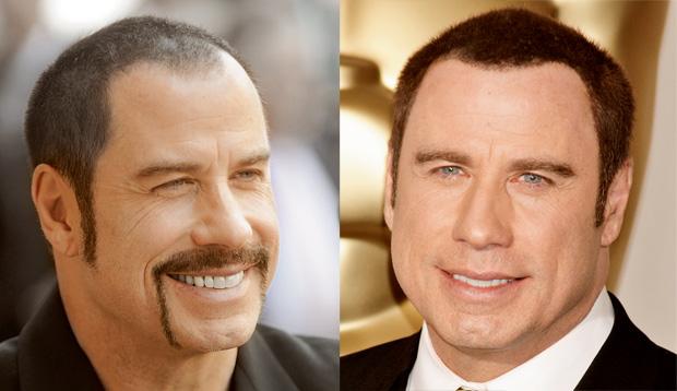 wypadanie w�osów, piel�gnacja, w�osy, Przeszczepy w�osów, John Travolta przed i po przeszczepie w�osów