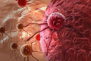 Rak neuroendokrynny skóry