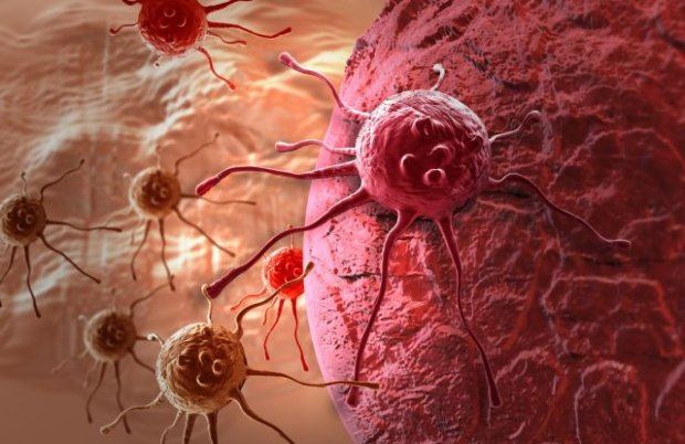Rak neuroendokrynny sk�ry