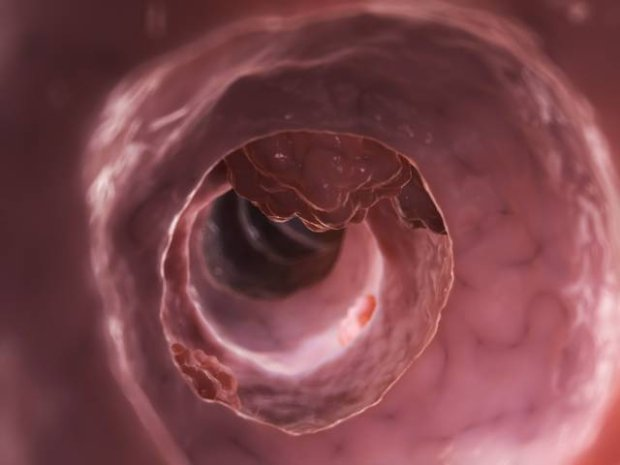 Zesp� Lyncha (HNPCC, dziedziczny rak jelita grubego niezwi�zany z polipowato�ci�)