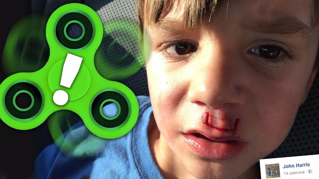Chłopiec chciał odtworzyć niebezpieczny trick.