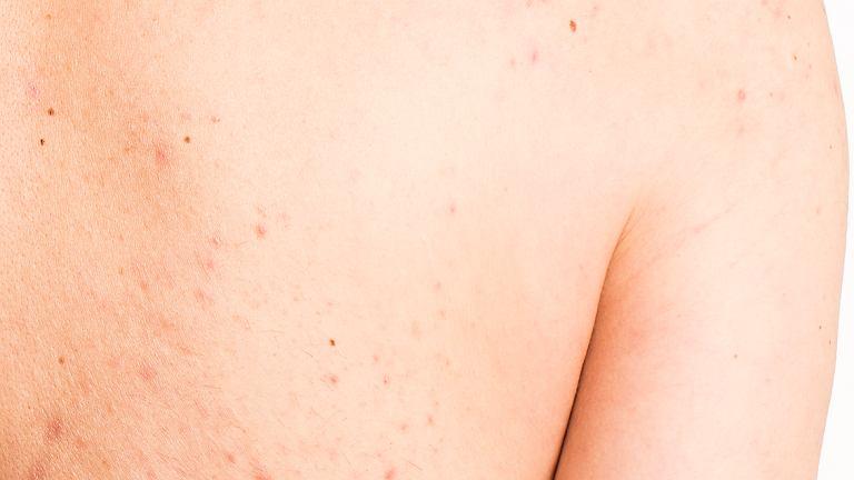 Pryszcze na plecach - domowe sposoby mogą pomóc w pozbyciu się tego problemu