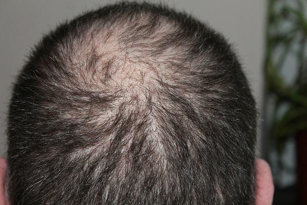 Specyfik na łysienie, który naprawdę działa? Koreańczycy są coraz bliżej