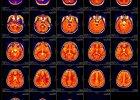 Nowa metoda leczenia choroby Alzheimera - ultrad�wi�kami