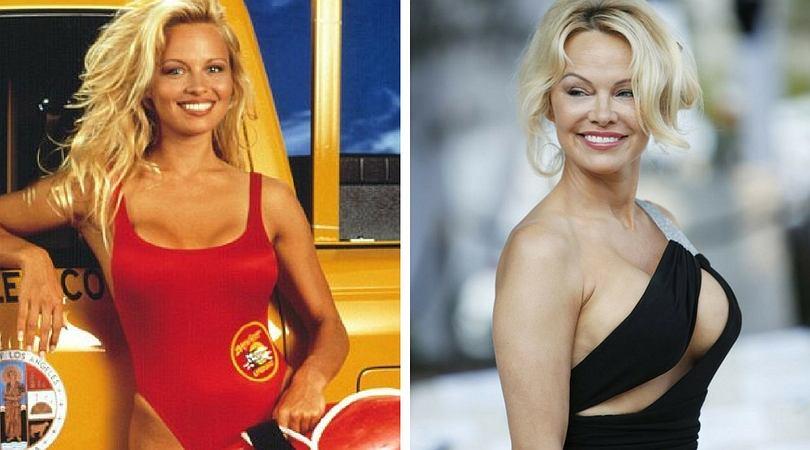 Pamela Anderson, Słoneczny Patrol