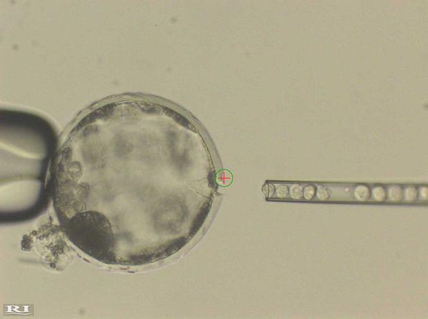 Naukowcy stworzyli ludzko-świńską chimerę. To szansa na hodowanie narządów do przeszczepów