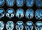 Parkinson. Jak spowolnić postęp choroby