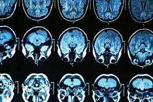 Choroba Parkinsona zaczyna się w brzuchu?