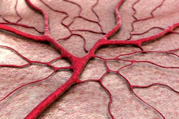 Mikroskopowe zapalenie naczy�