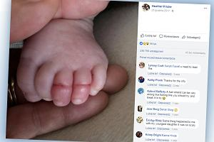 Mama udostępniła zdjęcie spuchniętych palców dziecka. Przez kilka włosów mogło dojść nawet do amputacji