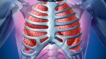 Płyn w jamie opłucnej bardzo często pojawia się u osób z zapaleniem płuc