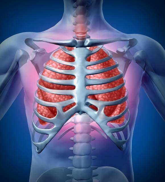 Płyn w jamie opłucnej (obrzęk płuc, woda w płucach)
