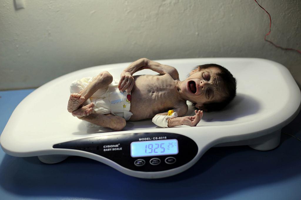 Miesięczna Sahar trafiła do szpitala w oblężonej Ghoucie z powodu skrajnego niedożywienia. Zmarła krótko po wykonaniu tych zdjęć