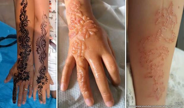 Tymczasowy Tatuaż Z Henny Wypalił Dziecku Dziury W Ręce Blizny