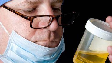Choroba syropu klonowego zawdzięcza swoja nazwę specyficznemu, bardzo słodkiemu, zapachowi moczu
