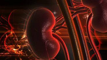 Kamica fosforanowa to jedno z powikłań po niewyleczonej infekcji dróg moczowych