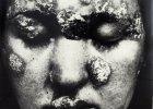 Syfilityczka. Esej o jednym zdjęciu Jerzego Lewczyńskiego (1924-2014)