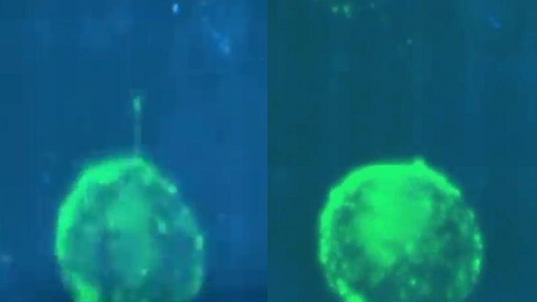 Naukowcy z Institute Cochin nagrali filmik metodą obrazowania, na którym widać, jak zarażony HIV limfocyt T transmituje wirusa przez błonę śluzową cewki moczowej. To dokładnie tłumaczy, jak wygląda infekcja 'krok po kroku'