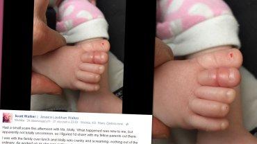 Włos owinięty wokół palca dziecka
