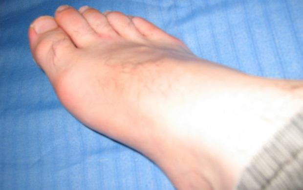 Stawy Charcota - przyczyny, objawy, leczenie