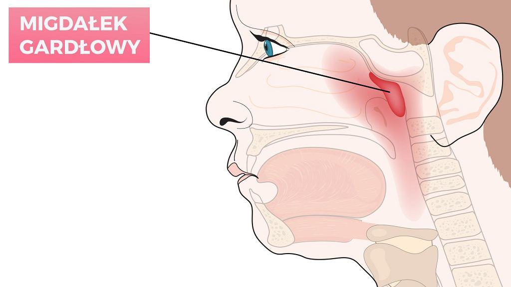 Adenotomia to usunięcie trzeciego migdałka. Wskazaniem do operacji jest m.in. przerost migdałka, który prowadzi do trudności z oddychaniem