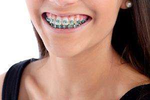 Aparat ortodontyczny - rodzaje, dla kogo, jak wygląda leczenie
