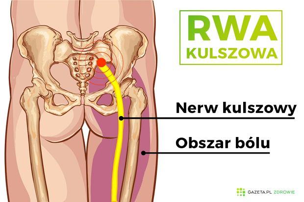 Rwa kulszowa - objawy, diagnoza, leczenie