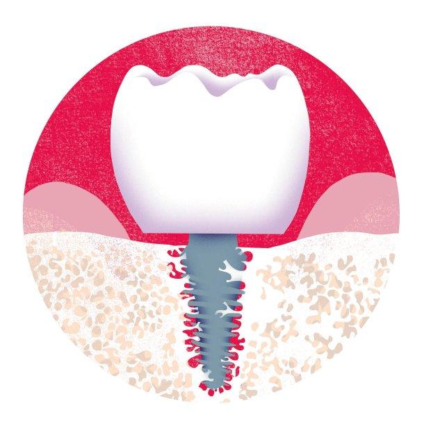 Brak tylnich zębów powoduje, że starzejemy się w ekspresowym tempie