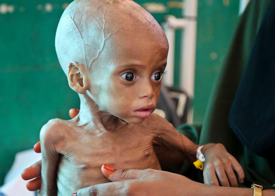 Niedożywione dziecko w szpitali w Mogadiszu