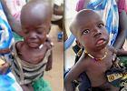 Za 65 zł ratujesz dziecko od śmierci głodowej. Tak działają polskie organizacje w Sudanie Południowym