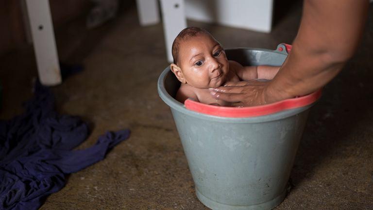 Dzieci z wywołaną wirusem Zika mikrocefalią urodzone w Brazylii