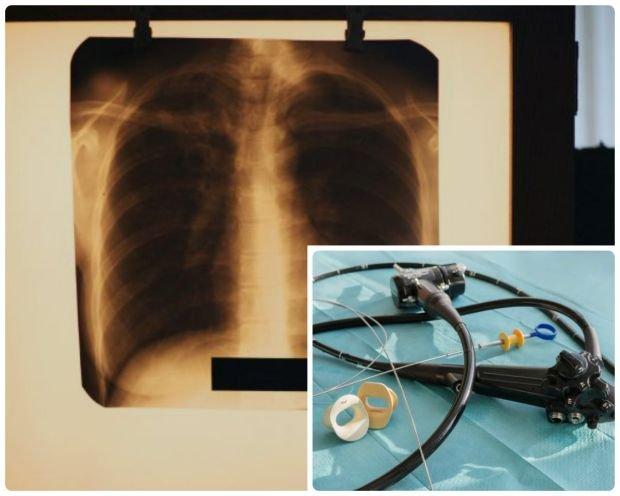 Endoskopowa cholangiopankreatografia wsteczna (ECPW)