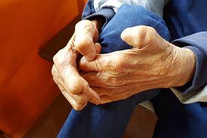 Trąd - choroba nie tylko dawnych czasów