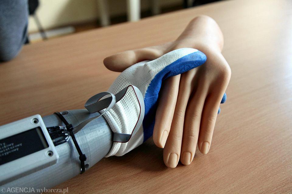 Modernistyczne Pierwsza taka proteza na świecie. Ręką porusza się za pomocą UV09