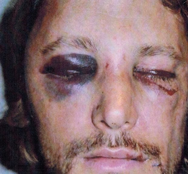 These are the brutal injuries Gabriel Aubry claims he suffered at the hands of Halle Berry's fiance Olivier Martinez. Aubry claims he was attacked by Martinez, a French actor, when he turned his daughter Nahla to Halle's home in Los Angeles on November 22, 2012 - Thanksgiving holiday in the United States. The photos of Aubry's black eyes and bloodstained face were included in a restraining order the model filed against Martinez at Los Angeles Superior Court.  Pictured: Gabriel Aubry
