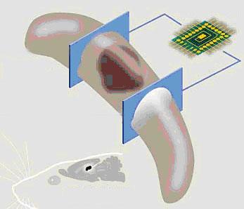Proteza uszkodzonych neuronów hipokampa / rys. www.NeuralProsthesis.com