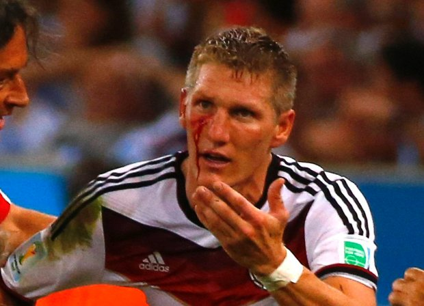 Germany's Bastian Schweinsteiger is led off the pitch while bleeding during extra time in the 2014 World Cup final between Germany and Argentina at the Maracana stadium in Rio de Janeiro July 13, 2014.   REUTERS/Michael Dalder (BRAZIL  - Tags: SOCCER SPORT WORLD CUP)   SLOWA KLUCZOWE: :rel:d:bm:TB3EA7D1QDWWI
