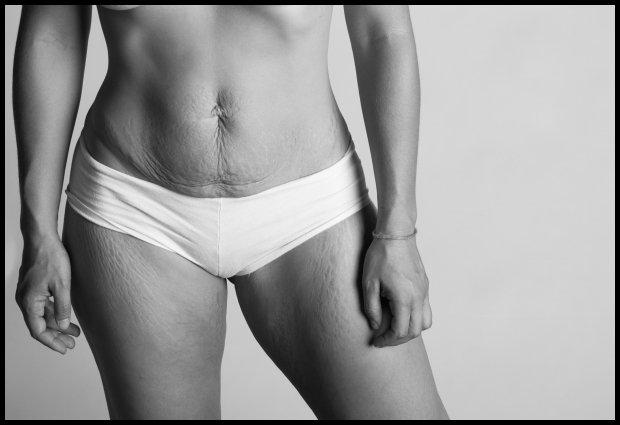 Rozstępy po ciąży - jak widać, nie tylko na brzuchu (Fot. www.jadebeall.com)