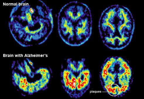 porównanie mózgu osoby zdrowej i chorej na Alzheimera