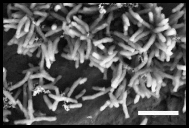 Taki tam, mikrob z bliska